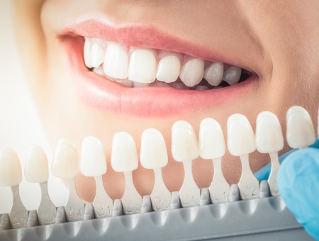 woman smiling veneers